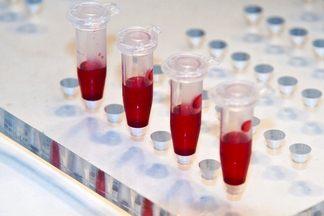 Анализ крови т4 свободный норма у женщин thumbnail