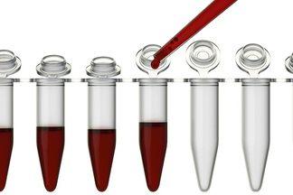 Креатинин норма в крови у женщин по возрасту в таблице. Нормальный уровень креатинина у женщин после 40, 50, 60 лет