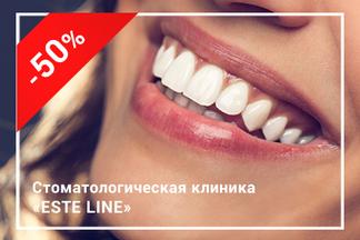 Скидки до 50% на имплантацию зубов