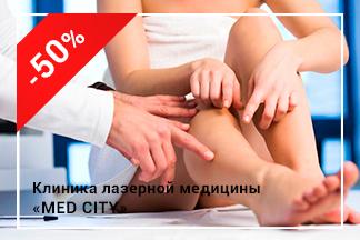 Акция «Консультация флеболога – 150 грн.»