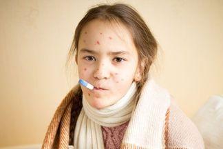 В Украине стремительно растет уровень заболеваемости корью