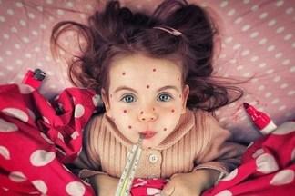 В Украине зафиксировали вспышку кори