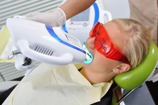 Современные методы отбеливания зубов: что лучше выбрать
