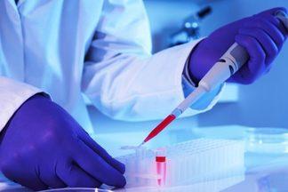 Моноциты повышены у взрослого, о чем это говорит?