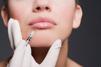 Увеличение губ: что нужно знать перед походом в клинику