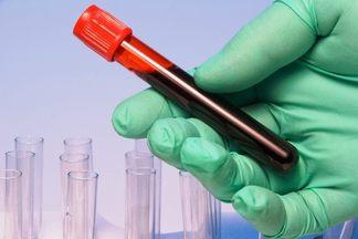 Повышенный пролактин у мужчин: причины