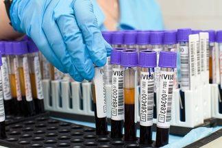 Норма общего билирубина в крови у мужчин