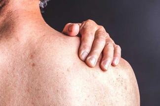 Псориаз: 8 мифов и фактов о заболевании
