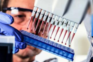 Норма АСТ и АЛТ у женщин и мужчин: анализ крови на уровень АСаТ и АЛаТ у детей, взрослых после 50 лет и при беременности