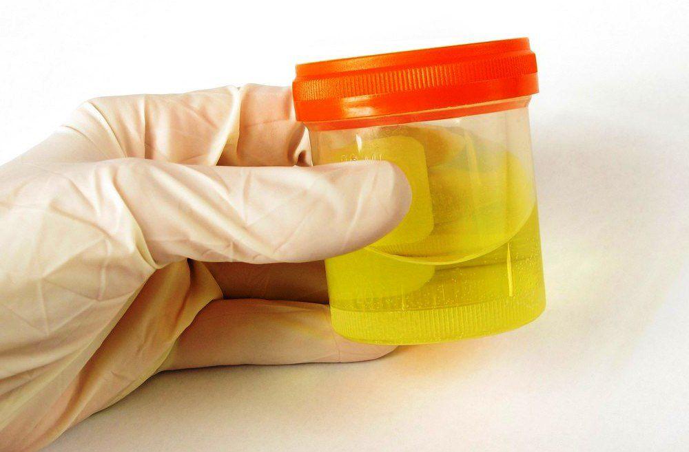 Повышены лейкоциты в моче у женщин: причины, лечение