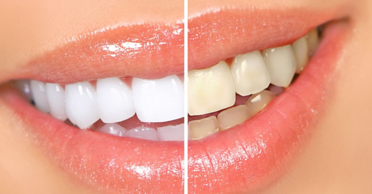 Профессиональное отбеливание зубов аппаратом Beyond Polus
