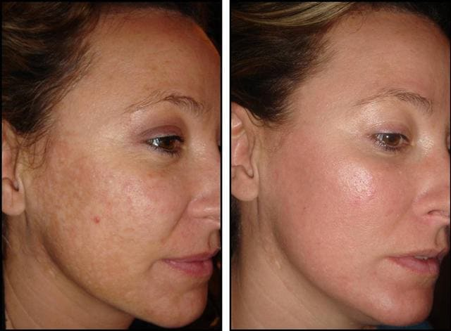 Резльтат лазерной шлифовки лица до и после