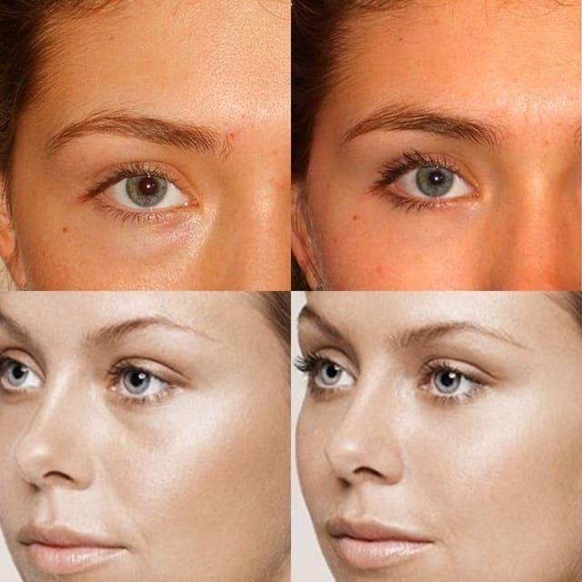 Коррекция носослезной борозды: до и после