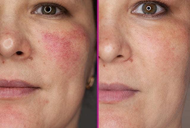 До и после процедуры удаления купероза