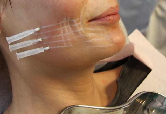 установка мезонитей на кожу лица