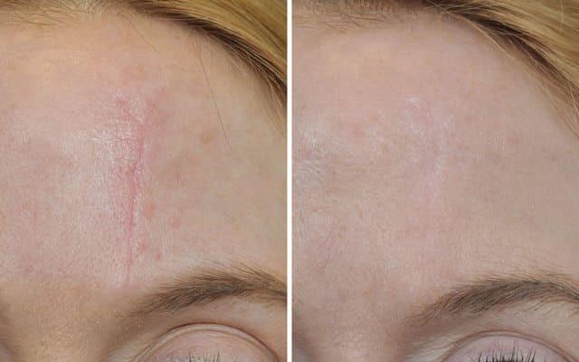 до и после процедуры удаления шрамов
